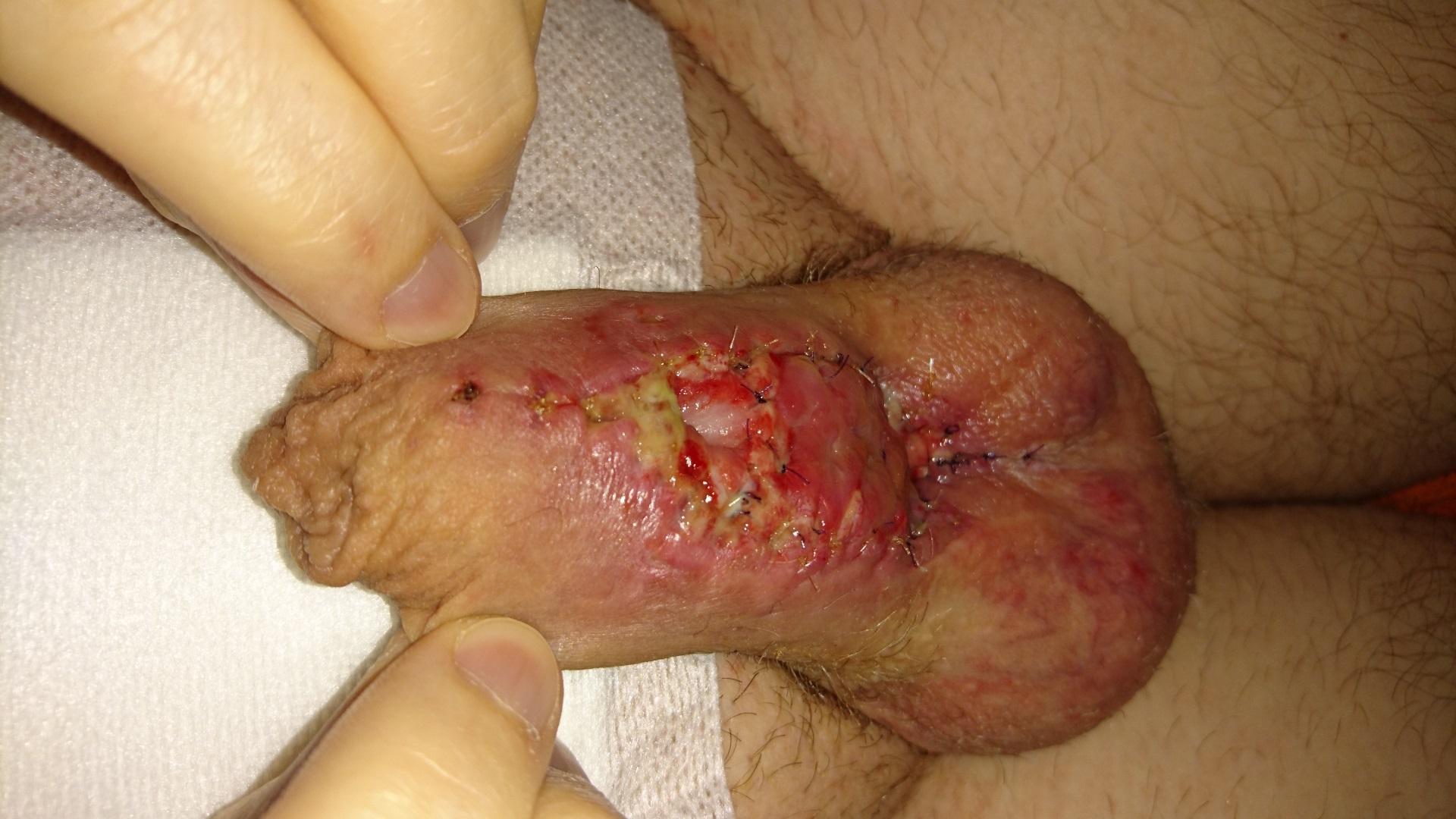 Penis Catheter 33