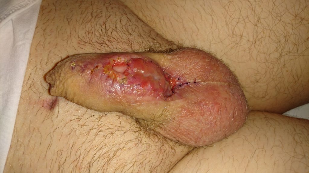 The healing wound on my penis, 19 days after the first stage of the two-stage urethroplasty. The graft is looking healthy and the stitches are loosening.