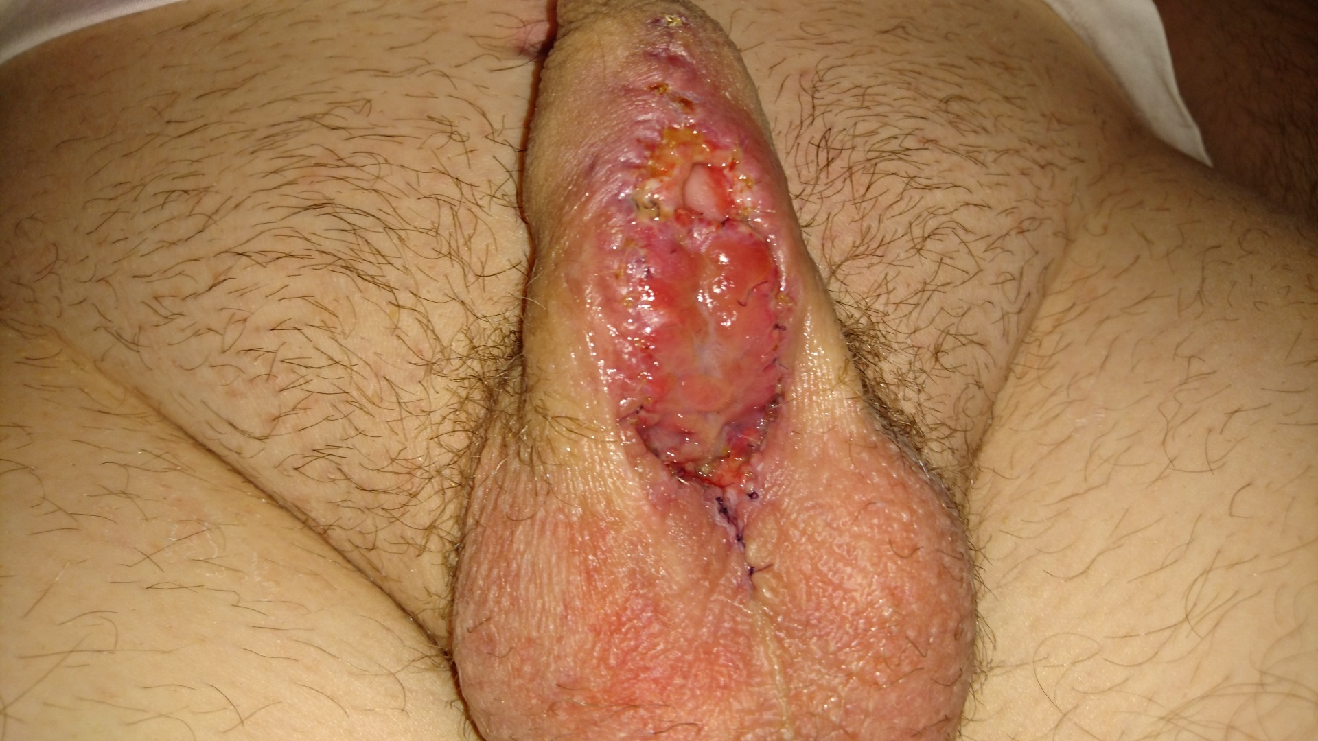On the penis appeared small pimples